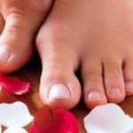Hallux Valgus pieds déformés