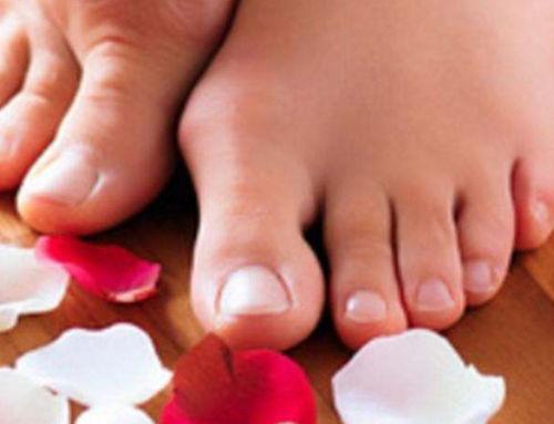 Va de retro Hallux Valgus ! – De jolies chaussures confortables pour mes pieds déformés